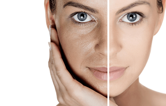5 approved ways to get rid of pigmentation from an expert